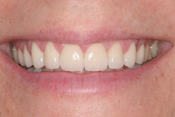 After Porcelain Veneer Treatment