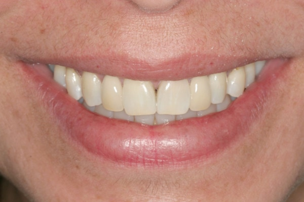 After Porcelain Bridge Treatment