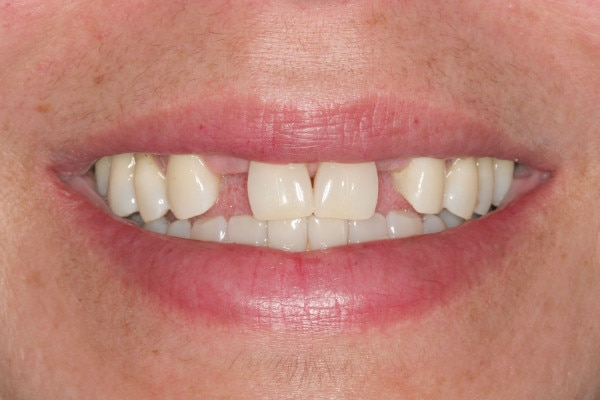 Before Porcelain Bridge Treatment
