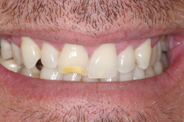 Crooked Teeth - Before Treatment