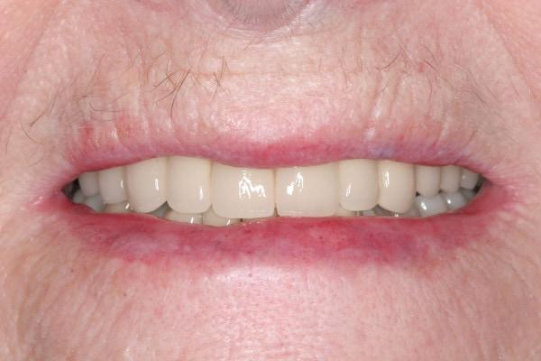 After Porcelain Crown Treatment