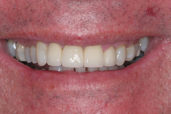 After Porcelain Crown Treatment