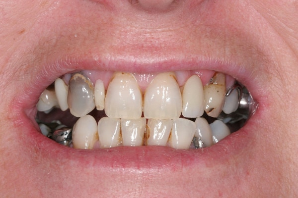 Discoloured and stained teeth before treatment