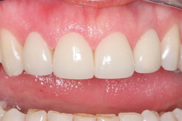 Closing Gaps Between Teeth - After Treatment