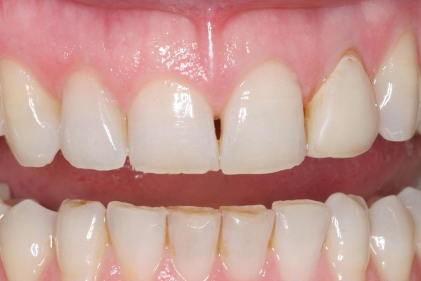 Closing Gaps Between Teeth - Before Treatment