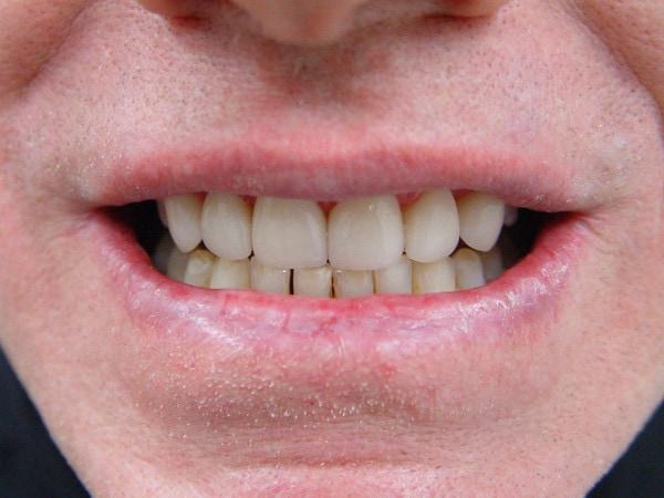 After Porcelain Veneer Treatment