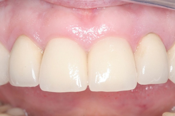 After Dental Implant Treatment