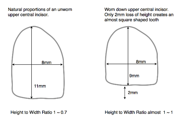 Diagram - Worn down teeth height and width