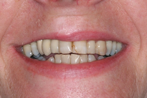 Worn Down Teeth - Before Treatment